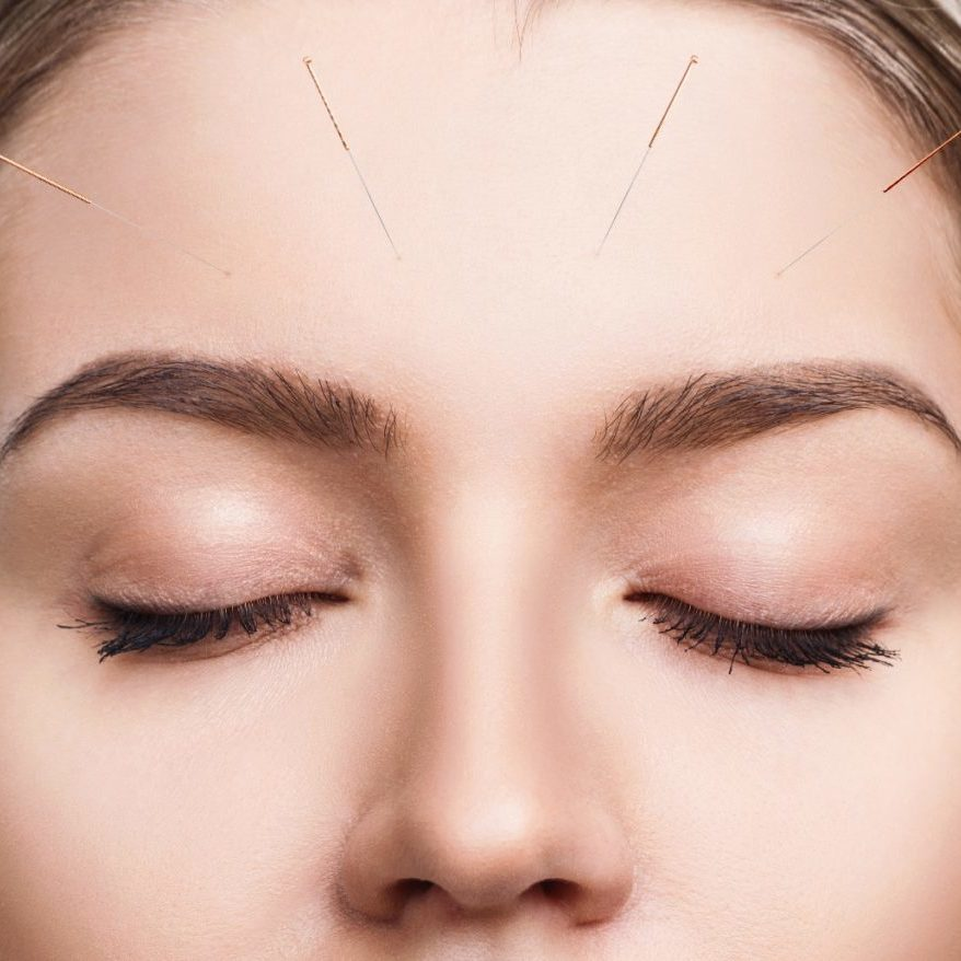 Young female face with inserted needles. Woman undergoing acupuncture treatment.